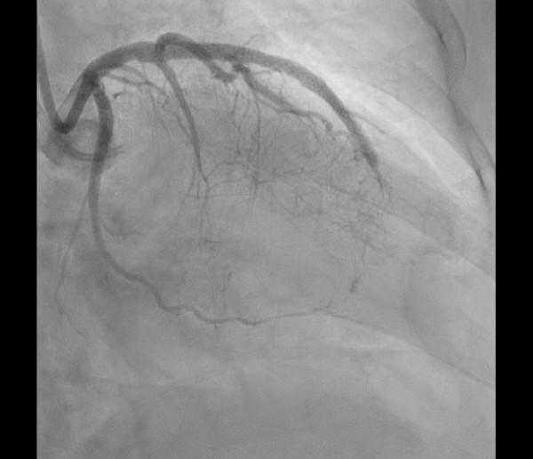 患者選擇接受心導管手術來處理。經2 個半小時努力,將其有問題的血管全部打通並置入支架,(記者湯世名翻攝)