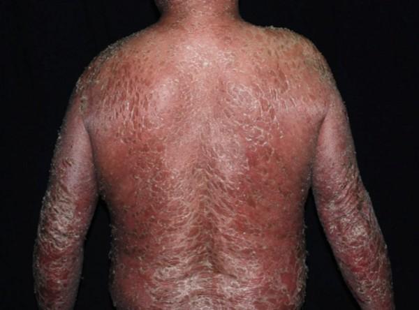 李姓患者嚴重乾癬導致全身性紅皮症,全身90%紅疹脫皮。(記者蔡淑媛翻攝)