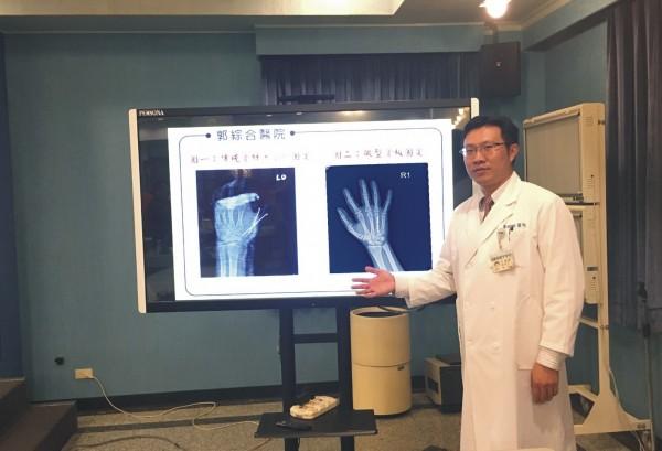 對於手掌受傷掌骨骨折,郭綜合醫院骨科主治醫師洪柏聖表示,微型互鎖式骨板是治療新選擇。(記者王俊忠翻攝)