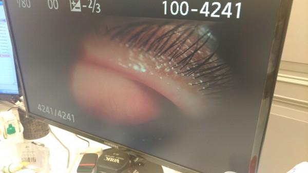 空氣品質差,影響民眾眼睛健康,眼科門診就醫人數大幅增加。(記者廖淑玲翻攝)