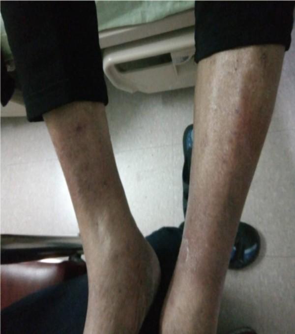 王阿公以降血小板藥物治療後,雙腳消腫復原,能下床走路。(記者蔡淑媛翻攝)