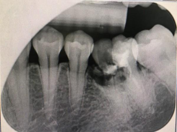 民眾過年期間不慎牙齒斷裂。(記者黃旭磊翻攝)