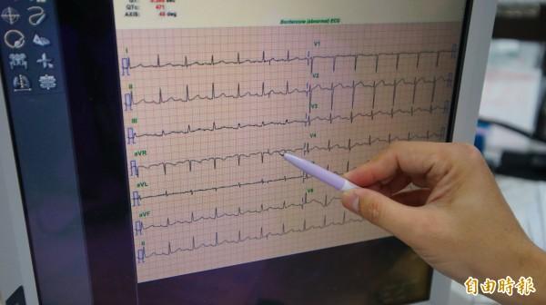 低血鉀症為鉀離子減少,可能造成不正常放電而心律不整。(記者陳彥廷攝)