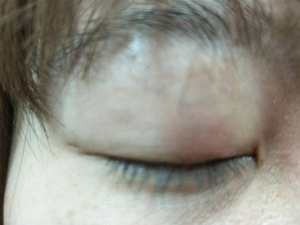 蔡女眼皮長針眼,紅腫疼痛。(記者張軒哲翻攝)