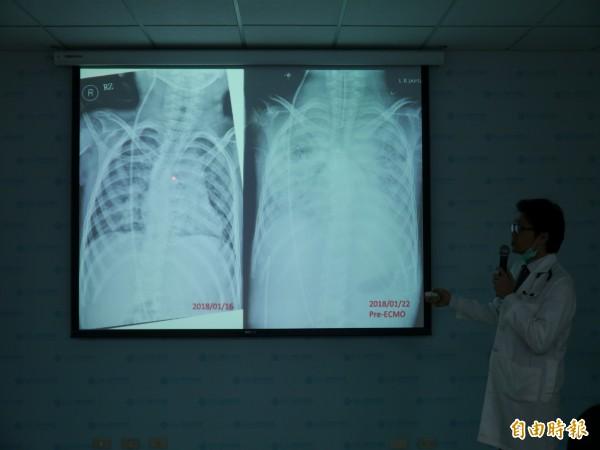 童綜合胸腔暨重症醫師高崇智講解小廷胸部X光,治療前(左)與治療後的差別。(記者張軒哲攝)