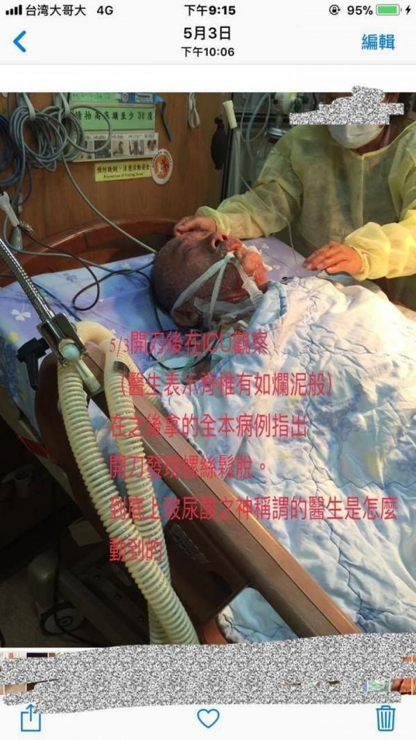 家屬表示,爸爸的情況在開刀後一直很糟。(記者邱灝唐翻攝)