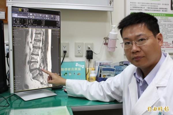 65歲林姓男子上下樓梯會膝蓋痛,還以為與膝蓋退化有關,聖馬爾定醫院骨科醫師林宗志(見圖)說,經檢查,是脊椎狹窄神經壓迫導致,建議患者身體不適應到醫院檢查,對症下藥。(記者王善嬿攝)
