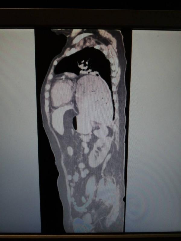 劉阿嬤的側身電腦斷層影像顯示胸腔後方的大胃部壓貼著前方的心臟。(記者王俊忠翻攝)