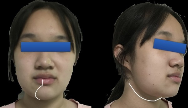 白線為陳小姐傳統手術傷口線評估。(北榮提供)