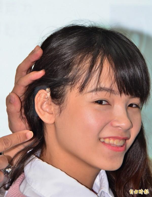 顏翠亭去年在接受右側人工電子耳手術。(記者吳俊鋒攝)