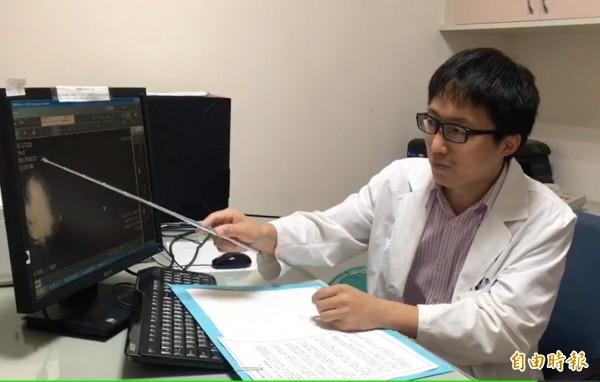 李忠懷指出沈婦為邊緣性葉狀瘤,腫瘤達10公分,為免復發進行全切除手術。(記者陳冠備攝)