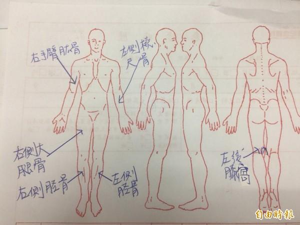 4個月大的男嬰,遭生父殘暴凌虐,手腳四肢骨頭都被徒手拗斷;圖為男嬰傷勢示意圖。(記者彭健禮攝)