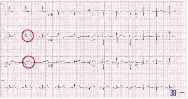 患者治療前心電圖顯示為心肌梗塞。(台北慈濟醫院提供)