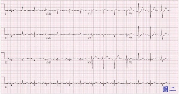 治療後心電圖恢復正常。(台北慈濟醫院提供)