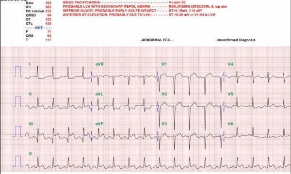 台南市立醫院家醫科醫師黃靜怡指出,心肌梗塞不只冬天好發;夏天高溫熱也會發生。(圖左下方三位置為心電圖異常疑心肌梗塞)(記者王俊忠翻攝)