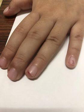 女童指甲遭剪傷。(記者黃旭磊翻攝)