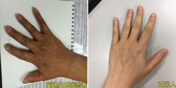 罹患「愛迪生氏病」的患者(左),因黑色素容易沈積,皮膚明顯比正常人(右)還黑。(記者陳建志翻攝)