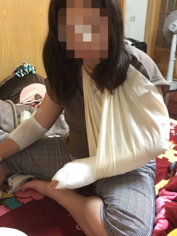 王女和表妹騎YouBike下坡摔傷,造成先落地的左手臂骨折、傷勢不輕。(記者李容萍翻攝)