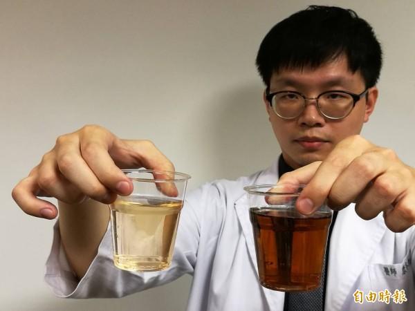 醫師指出,正常尿液顏色為淡黃色似綠茶(左),當出現深茶色尿如紅茶(右),甚至如可樂,可能是肝膽疾病。(記者周彥妤攝)