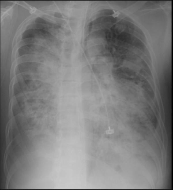 許先生流感併發嚴重肺炎,X光片顯示雙側肺葉一片白霧,肺部瀰漫性浸潤。(記者蔡淑媛翻攝)