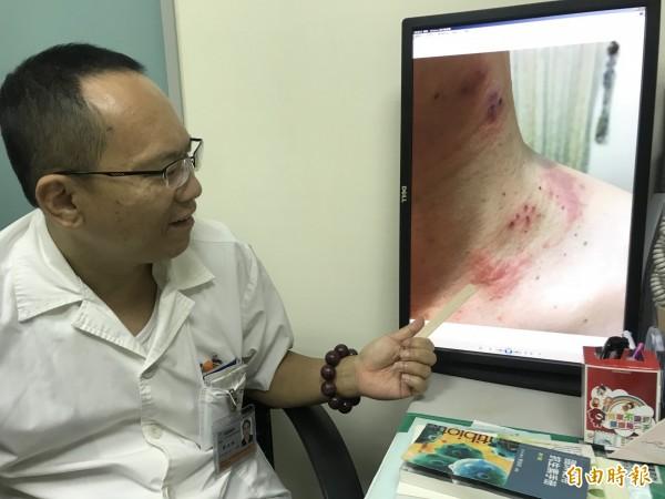 烏日林新醫院的感染科主任郭正邦表示,張男只塗藥膏,結果紅疹越長越多,蔓延至髮際邊、胸前。(記者蘇金鳳攝)