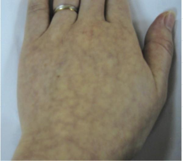 俞小姐罹患抗磷脂症候群,手部呈現網狀青斑,細小的靜脈有血栓情形。(記者蔡淑媛翻攝)