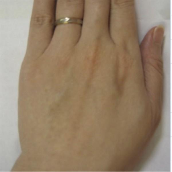 俞小姐罹患抗磷脂症候群,手部呈現網狀青斑,治療後明顯改善。(記者蔡淑媛翻攝)