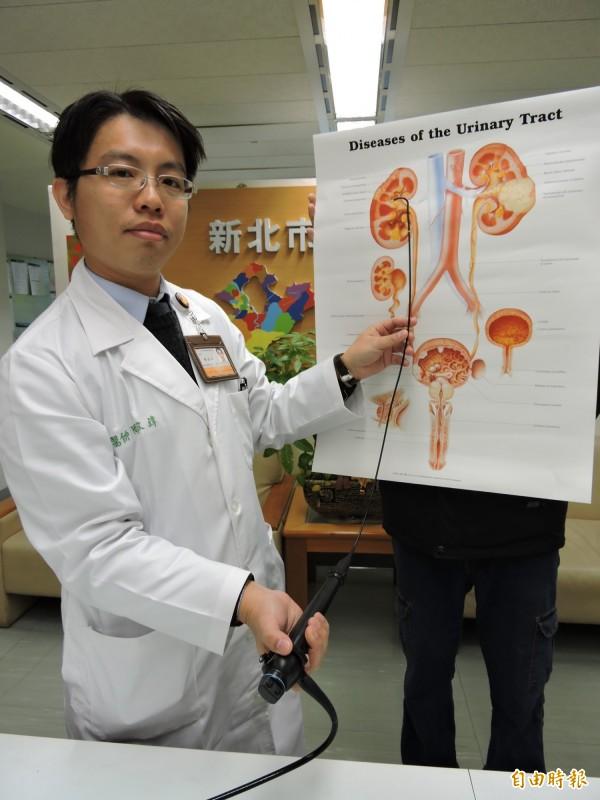 軟式輸尿管鏡前端可以270度彎曲,經由尿道及輸尿管深入腎臟各個角落,把結石擊碎成粉末排出。(記者賴筱桐攝)