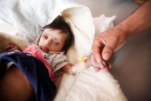 多年內戰導致迄今有至少17萬無辜葉門民眾喪生、1400萬葉門人面臨嚴重大饑荒。。(路透)