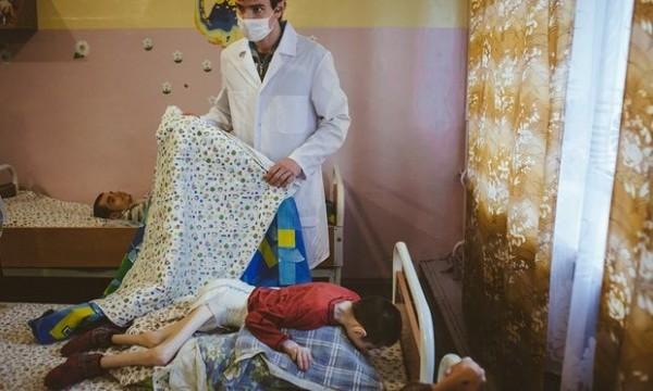 白俄羅斯驚傳有孤兒院的近百名兒童被發現瘦到只剩皮包骨,「腿瘦到就像牙籤包肉一般」。(圖擷自衛報)