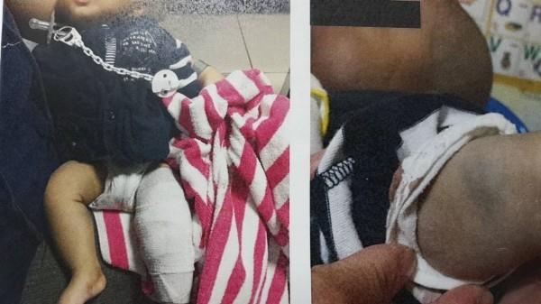 男嬰身體淤青及左腿骨折包紮。(記者彭健禮翻攝)