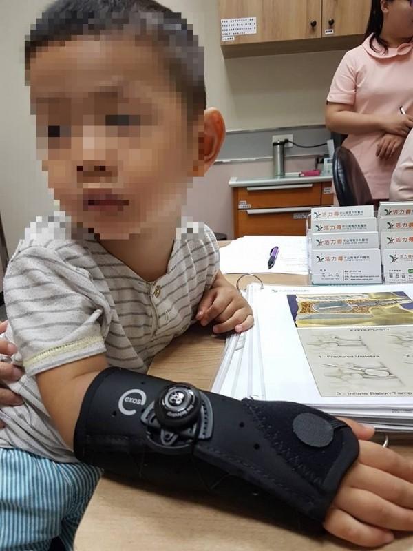 小男童右手橈骨骨折,使用手部護具做外部固定,骨折很快復位,不用開刀就能止痛。(活力得中山脊椎外科醫院提供)