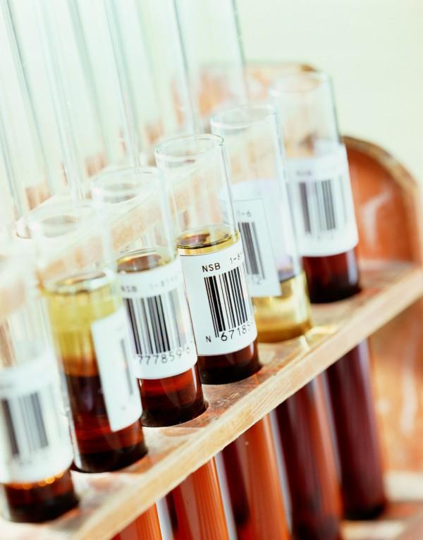 美國約翰霍普金斯大學研發出一種劃時代的血液檢測方式「CancerSEEK」,可早期發現8種常見癌症。圖為示意圖。(情境照)
