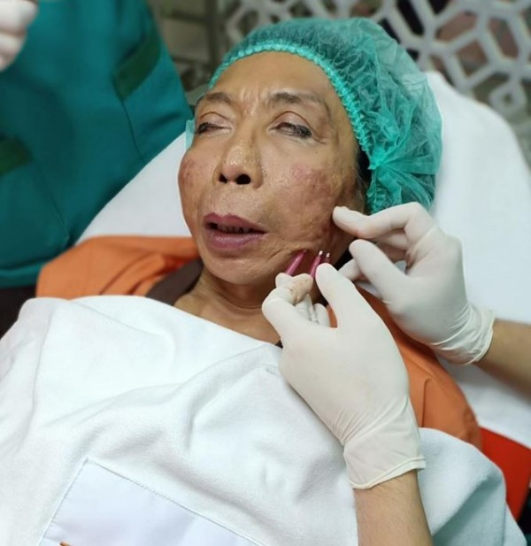 醫生拿出3個醫美器材插入席丹左側面部,她則安然地躺在診療椅上閤起雙眼休息。(圖擷取自สิตางศุ์ บัวทอง臉書)