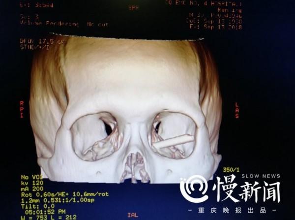 中国一名男子喝酒喝到失去意识,醒来发现左眼不停流血,送医检查才发现眼眶中竟插著一根筷子。(撷自重庆晚报)
