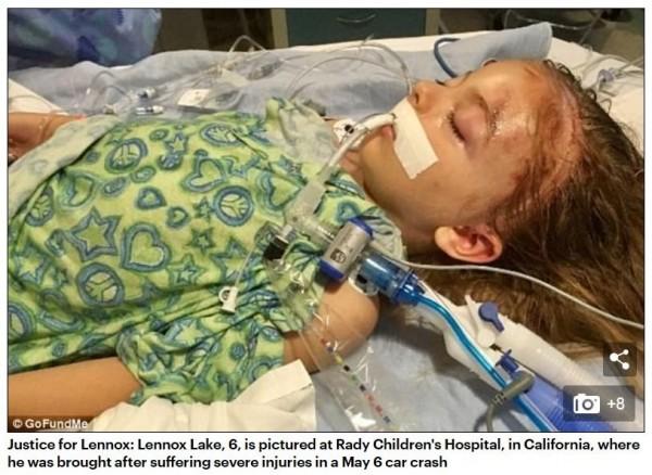 6歲的萊諾克斯(Lenox)在回家的路上遭撞,腦部傷勢十分嚴重。(圖擷自《每日郵報》)