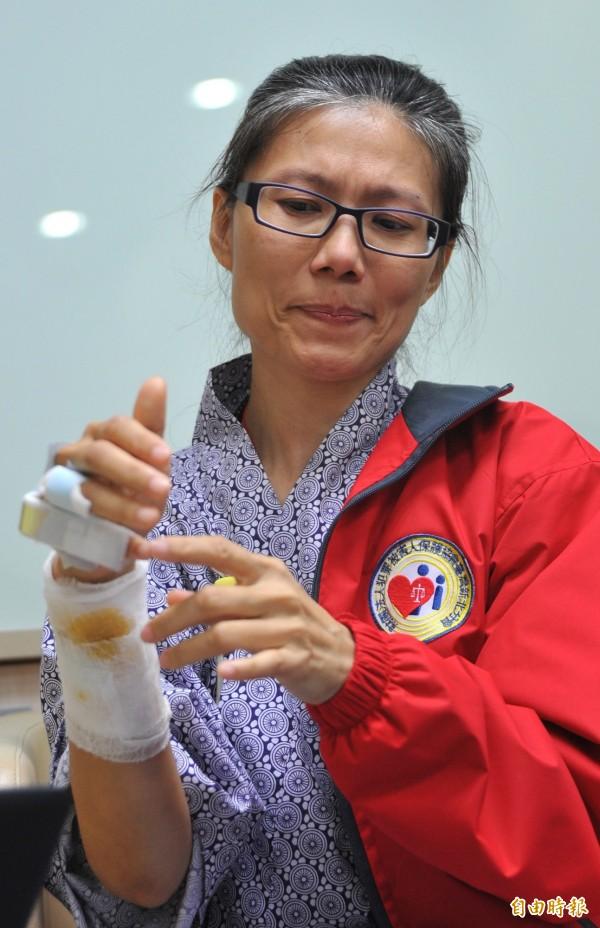 北捷殺人事件受害者陳家慧,她當初為了擋下刀子,造成右手韌帶斷裂。(資料照,記者劉信德攝)