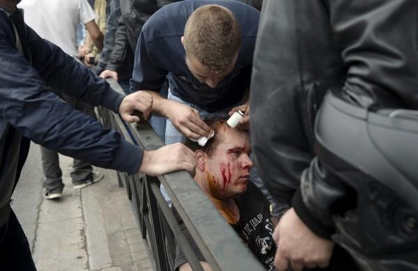 在此次示威活動中,至少有3名示威民眾受傷,其中兩人頭部受傷流血。(美聯社)