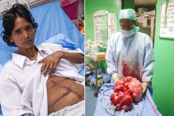 手術團隊花費了8個小時的時間將腫瘤取出,更讓執刀醫生驚呼這是他看過最大的腫瘤了。(圖片擷取自dailystar)