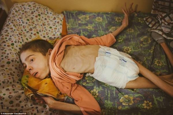 白俄羅斯首都驚傳有間孤兒院的近百名兒童與青少年營養不良,部份青少年體重只有15公斤。(圖擷自每日郵報)