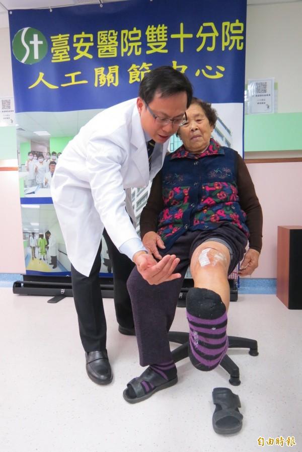 「新月形」微創人工膝關節置換手術助銀髮族重拾「膝」望。(記者蘇孟娟攝)