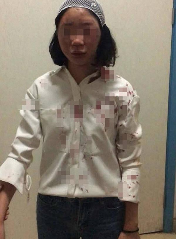 女學生去年赴昆明旅遊,被拉客司機追撞、毆打,當場血流不止,送醫後頭部縫了6針。(圖翻攝自澎湃新聞)