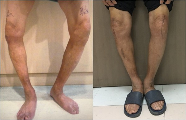 老翁雙膝內側軟骨磨損,雙腳呈現O型腿(左圖),手術後關節變形程度大幅改善(右圖)。(醫院提供)