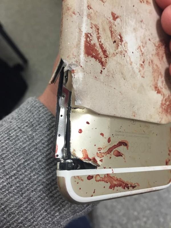 炸出的螺母打穿麗莎的中指和手機。(圖擷自Facebook)