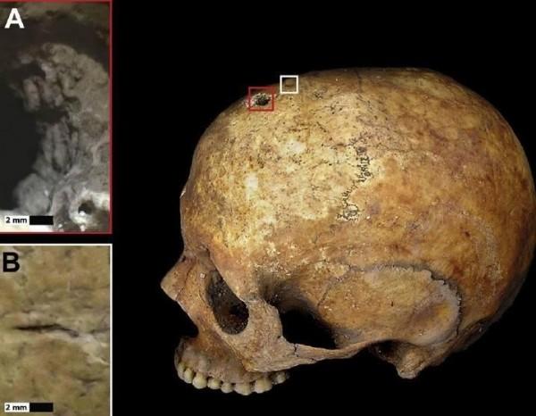 母亲头骨有一个平整「钻孔」。(取自《The Sun》)