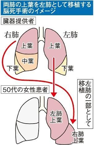 由於捐贈者的左肺及右肺下半部都因病變,無法全肺移植,醫生決定把捐贈者的左肺上半部和右肺上方三分之一結合,製成一個健康的左肺。(圖取自《山陽新聞》)