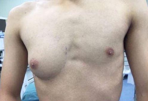 19歲的小楊長年受單側乳腺異常發育所苦。(擷取自《錢江晚報》)