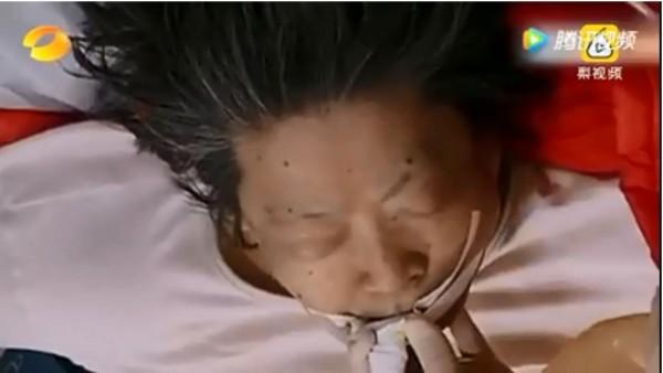 中國廣東一名阿嬤突然心臟病發昏迷,醫生急救30分鐘還是毫無反應。(圖擷取自YouTube)