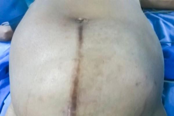 在還沒開刀前,腫瘤大到快把肚皮給撐破,她和這些腫瘤相處了2年半的時間,中間腫瘤快速成長的痛,讓她一度有自殺的念頭。(圖片擷取自mirror)