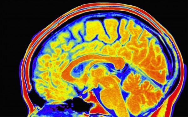 試圖找出哪些基因與智力有關的英美科學團隊,鑑別出538種智力基因,科學家也發現越聰明的人可能活越久,因為部份智力基因也與長壽有關。(取自網路)